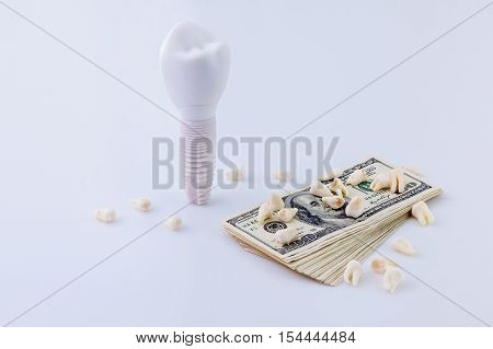 Dental implant .The maquette of the dental implant near the pack of dollars and teeth on it.