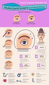 Vector Illustrated set with double eyelid surgery. Non-incisional technique. Infographics with icons of plastic surgery procedures. poster