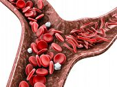 Sickle cell anemia, 3D illustration showing blood vessel with normal and deformed crescent isolated white poster