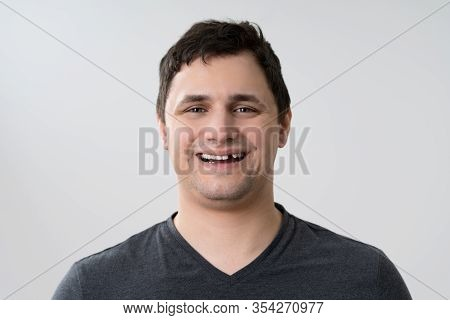 Portrait Of Young Man With Missing Tooth