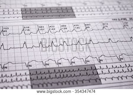 Electrocardiogram Strips With Cardiac Arrhythmias. Alterations Of Heartbeats Represented On Paper. S