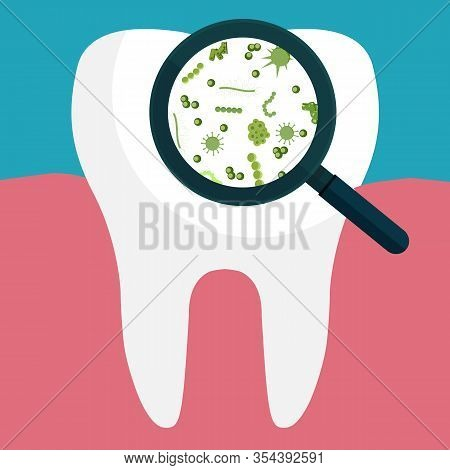 Bacteria On A Human White Tooth Being Viewed On A Magnifying Glass. Vector Illustration