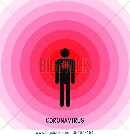 Man Infected With Coronavirus Bacteria. Spreading Of Dangerous Coronavirus Infection. Covid-19. Coro