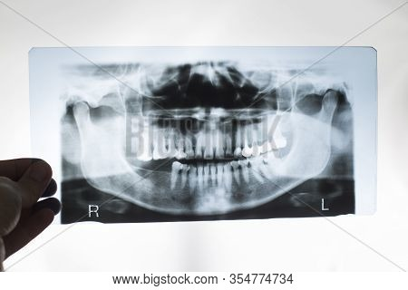 The Dentist Doctor Holds In His Hand An X-ray Picture Of The Jaw With False Teeth. Dental Prosthetic