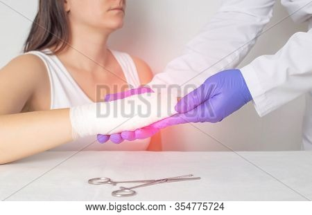 A Surgeon Doctor Examines A Patient S Palm For A Fracture Or Crack In A Bone. Scaphoid Fracture, Red