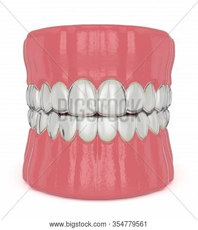 3d Render Of Invisalign Removable And Invisible Retainers On Jaw Over White Background