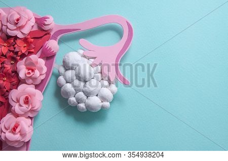 Concept Polycystic Ovary Syndrome, Pcos. Paper Art, Awareness Of Pcos, Image Of The Female Reproduct