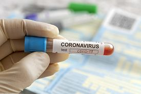 Nurse Holding A Positive Blood Test Result For The New Rapidly Spreading Coronavirus, Originating In