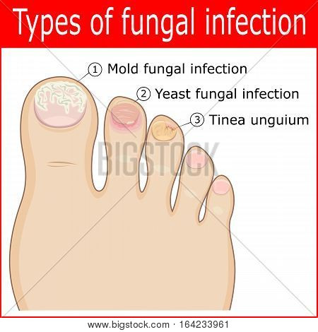Types of fungal infections in the nails of the toes