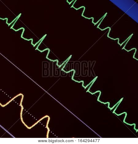 Heart monitoring in emergency care. Medical background
