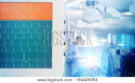 Heartbeat monitoring during the surgical operation in hospital
