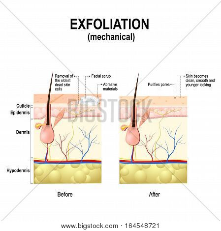 Exfoliation or Peeling is a cosmetic procedure (physically scrubbing) to remove impurities from the skin unclog the pores and exfoliate dead skin cells. Cross-section of a skin layers.