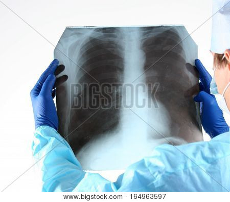 Doctor in blue uniform holding X -rays.