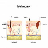 Melanoma or skin cancer. This rare type of skin cancer originates from melanocytes. layers of the human skin. poster