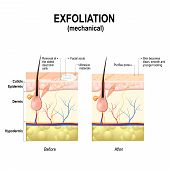 Exfoliation or Peeling is a cosmetic procedure (physically scrubbing) to remove impurities from the skin unclog the pores and exfoliate dead skin cells. Cross-section of a skin layers. poster
