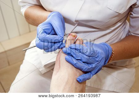Podiatry. Diabetic Foot. Cabinet Of Foot Podiatrist