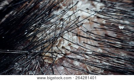Macro of hair scalp asian human with black hairline have a problem with dandruff and scaly from psoriasis because hormonal, dirty and stress poster