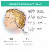 The use of electrodes to read small electromagnetic waves from the human brain. poster