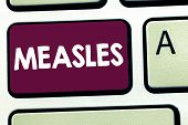 Text sign showing Measles. Conceptual photo Infectious viral disease causing fever and a red rash on the skin poster