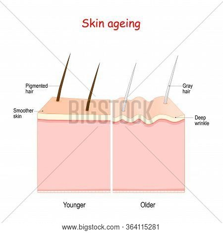 Aging Process. From Smoother Younger Skin With Pigmented Hair To Older Skin With Deep Wrinkle And Gr