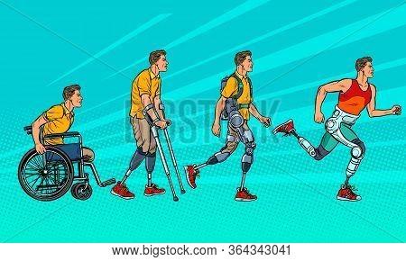 Evolution Of Rehabilitation. Man Leg Prosthesis. Pop Art Retro Vector Illustration Vintage Kitsch 60