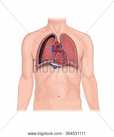 Pneumothorax, Human Anatomy, Illustration, Lungs, Heart, Collapsed Lung. Abnormal Collection Of Air
