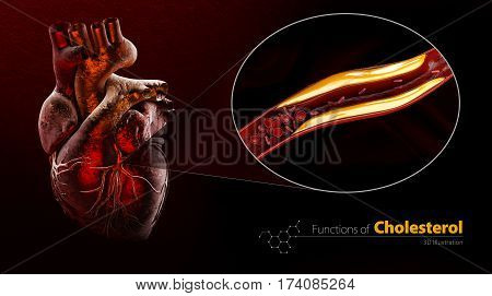Heart as example, Blocked blood vessel, artery with cholesterol buildup, 3d Illustration