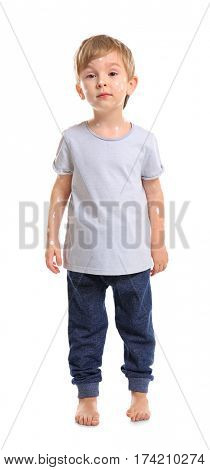 Cute little boy with chickenpox on white background