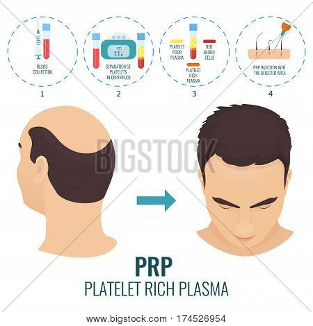 Male hair loss treatment with platelet rich plasma injection. Stages of PRP procedure. Alopecia infographic medical template for transplantation clinics and diagnostic centers. Vector illustration.