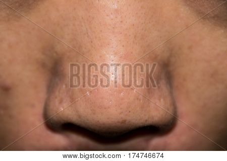 Close up Acne Acne holes welded on Nose