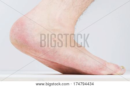 Men with signs of flatfoot foot and nail fungus. Foot Diseases. Fungal disease.