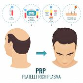 Male hair loss treatment with platelet rich plasma injection. Stages of PRP procedure. Alopecia infographic medical template for transplantation clinics and diagnostic centers. Vector illustration. poster