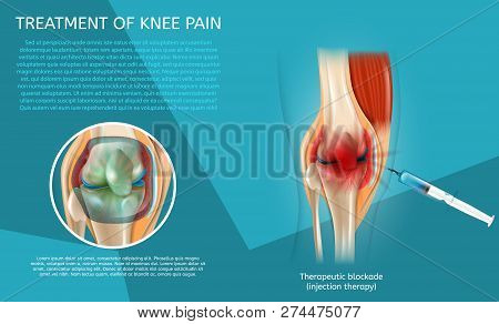 Realistic Illustration Treatment of Knee Pain. 3d Vector Image Banner Therapeutic Blockade Human Knee Joint. Syringe Injection. Medical Poster Procedure and Result Treatment with Injection Therapy. poster