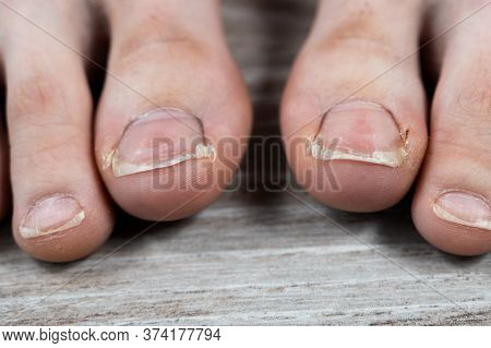 Ugly Chapped Sick Toenails With Calluses In A Girl