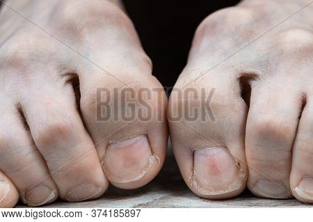 Scary Toes With Hairs And Sore Overgrown Nails