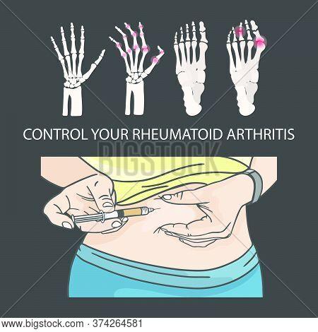 Rheumatoid Arthritis Control Hypodermic Injection In Stomach Medical Human Illness Vector Illustrati