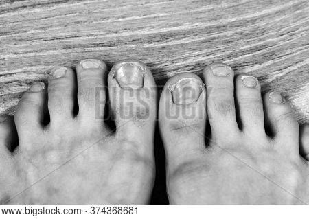 Black And White Photo Broken And Ingrown Ugly Toenails Of A Sloppy Girl