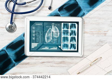 Medical Diagnostics In Modern Pulmonology. Tablet Computer With Medical Application Interface On Scr