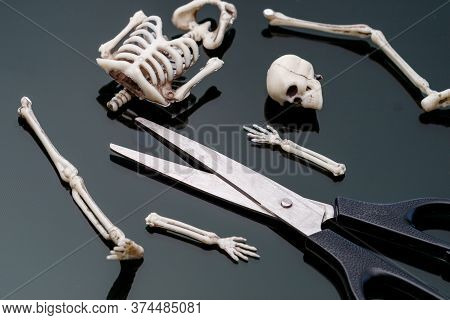 The Dissected Skeleton Of The Man In Pieces Is In Front Of The Scissors. Dismemberment Weapon