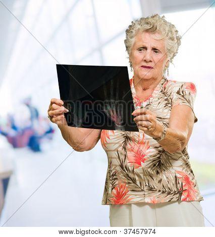 Sad Senior Woman Looking At X Ray, Indoors