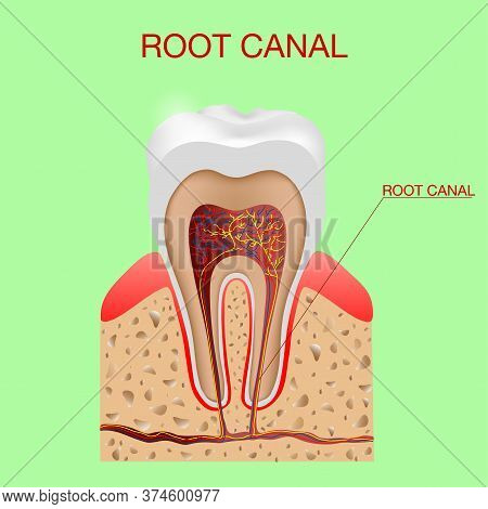 Root Canal. Dental Infographic. The Structure Inside And The Tooth Diagram And Chart Illustration Ve