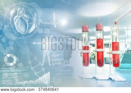 Medical 3d Illustration, Test-tubes Vials In College Facility - Blood Dna Test For Calcium Or Lupus