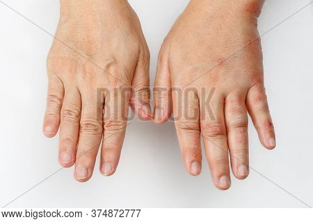Shingles Disease That Causes A Swollen Hand.