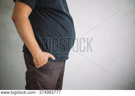 Overweight Man With Excess Belly Fat, Copy Space. Weight Loss, Diet And Health Care Concept