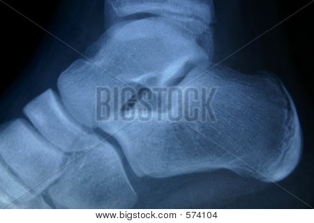 X-ray Ankle