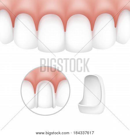 Vector dental veneers on human teeth isolated on white background