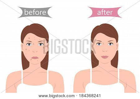 Girl with acne problem before and after. Woman with pimples on the face. Skin problems and treatment. Vector illustration flat design poster