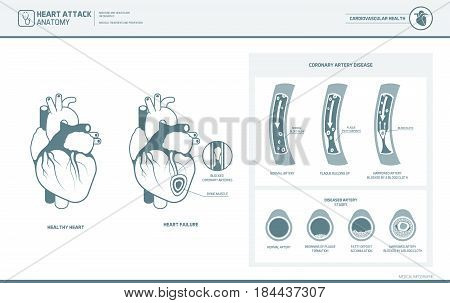 Heart attack and atherosclerosis medical illustration: healthy and damaged heart blood vessel section with fatty deposit accumulation