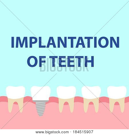 Dental implant model. Flat design vector illustration vector.