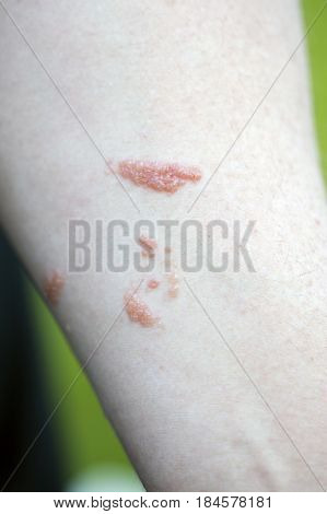 Poison ivy rash on man's inside arm